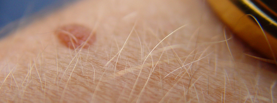 Types of skin moles and how to know if they're safe