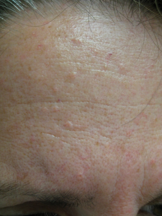 Sebaceous hyperplasia | Common skin lesions | SkinVision Blog