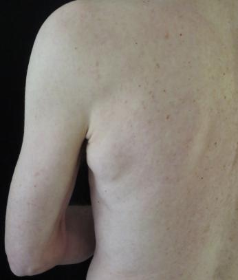 Lipoma | Common skin lesions | SkinVision Blog