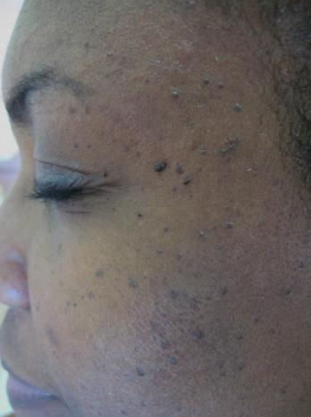 Dermatosis papulosa nigra   Common skin lesions