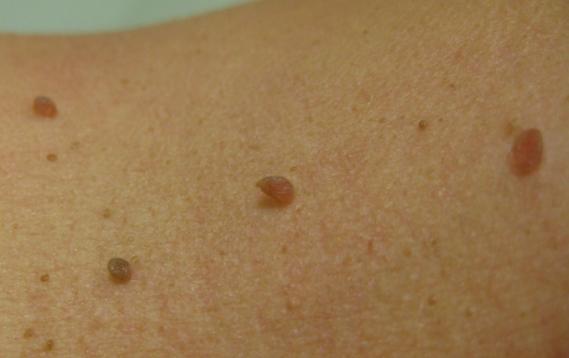 Skin tags (acrochordons)