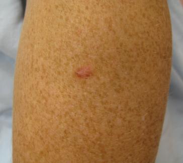 Dermatofibroma   Common skin lesions