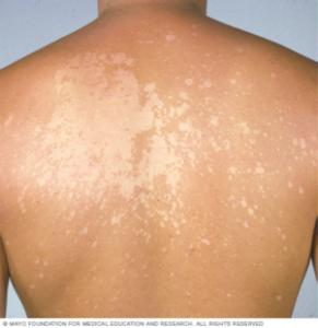 Tinea versicolor | SkinVision Blog