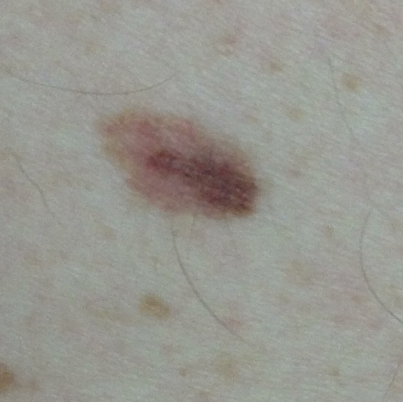 Round skin lesions and what they mean | SkinVision Blogs