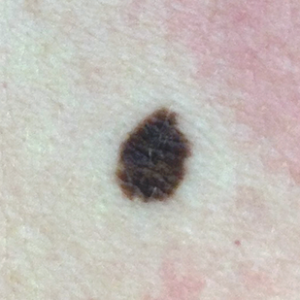 Skin Cancer - A Complete Overview of Symptoms and Types - SkinVision