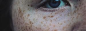 melanoma freckle