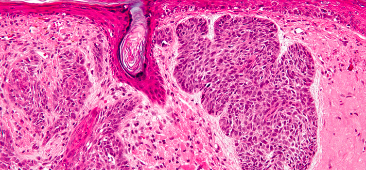 Causes Basal Cell Carcinoma