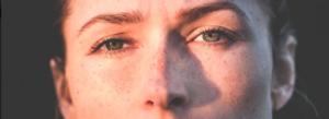 melanoma signs