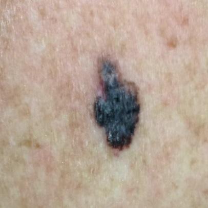 Melanoma picture
