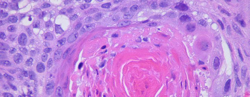 What is squamous cell carcinoma in situ?