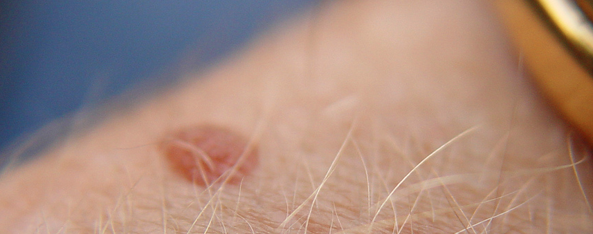 Skin Cancer Moles: what they are and how to identify them