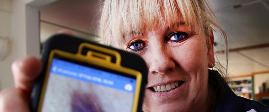 Daily Mail: How my phone saved my life – Woman's mobile told her she had skin cancer