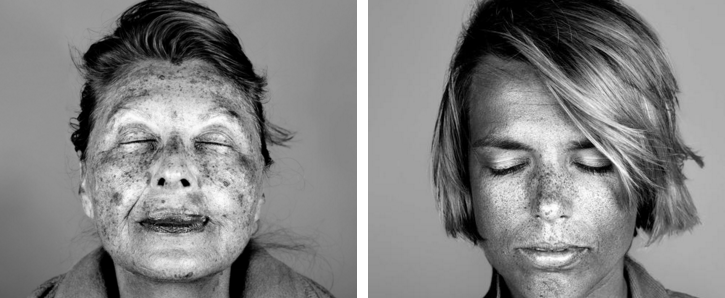Skin photos reveal the true impact of the sun