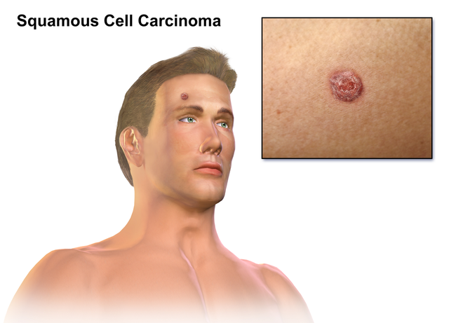 Squamous cell carcinoma picture