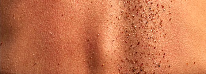 Red spots on the skin, but not itchy? Find out the common