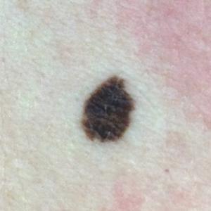 Mole Image - Asymmetry