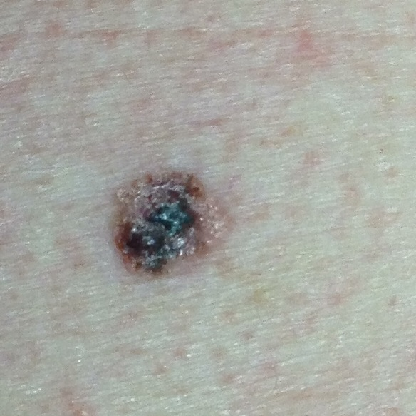 Pictures of melanoma symptoms