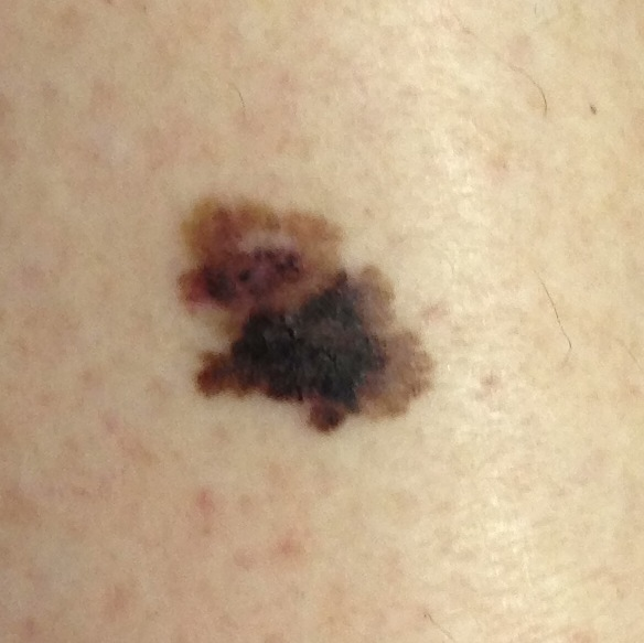 Example pictures of melanoma symptoms