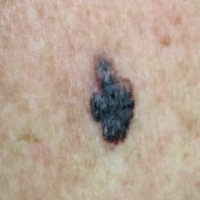 Example pictures of melanoma