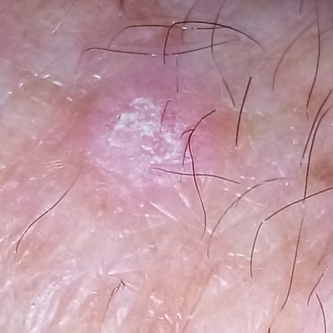 Squamous Cell Carcinoma skin tag