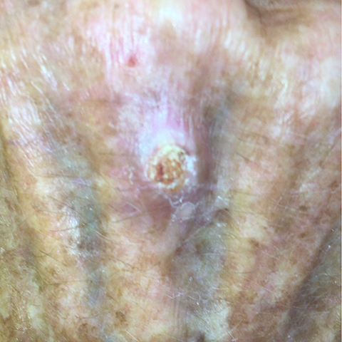 Squamous Cell Carcinoma picture on hand