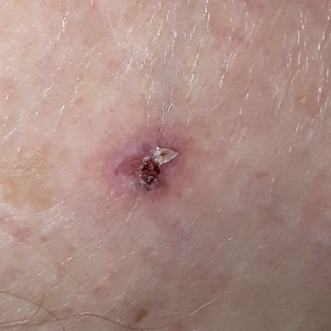 Example picture of basal cell carcinoma