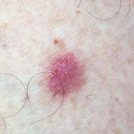 Example of Basal Cell Carcinoma