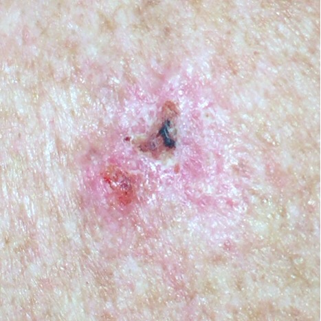 Crusty basal cell carcinoma
